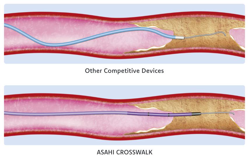 Asahi Crosswalk Comparison