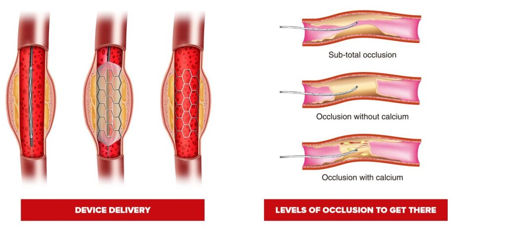 illustration of coronary guidewire in a lesion delivering a stent device on the left and the different levels of occlusion in a lesion preventing the passage of the guide wire on the right