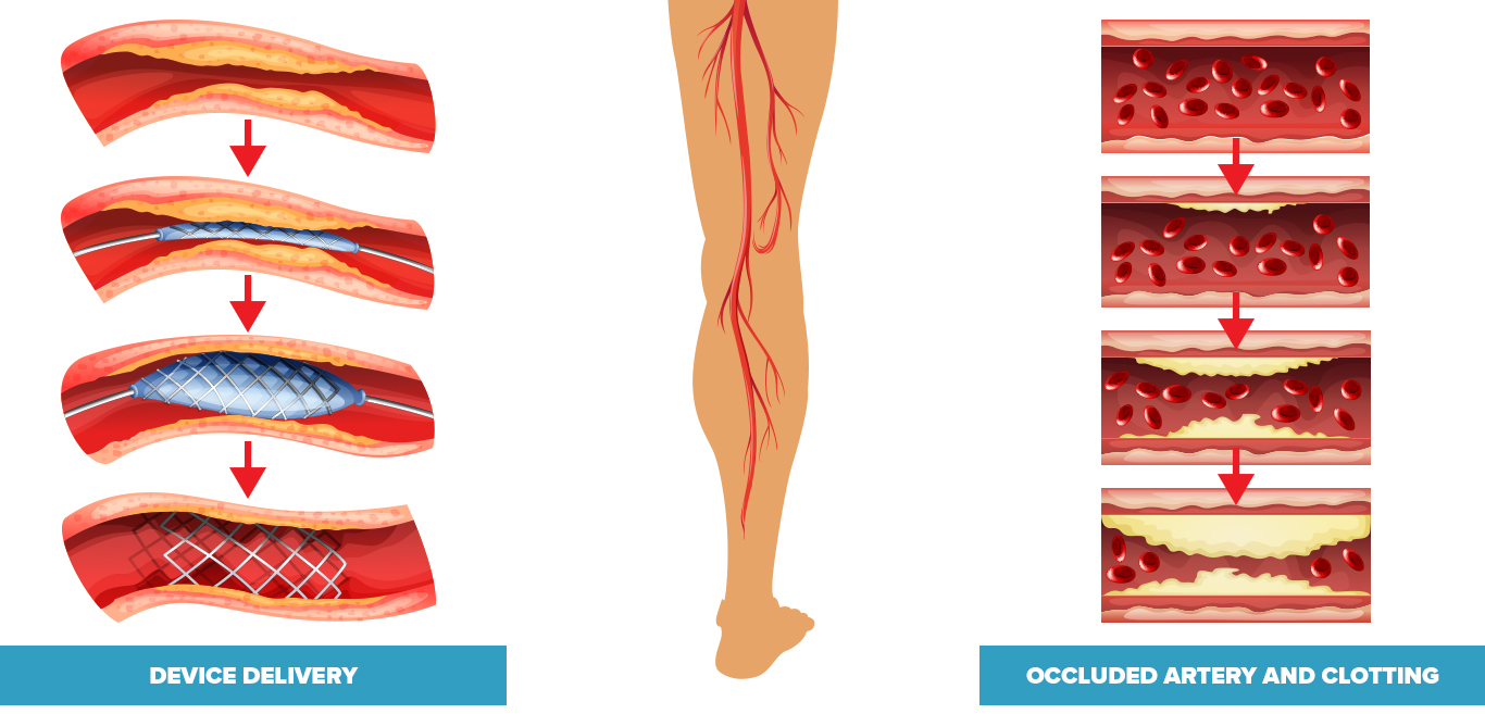 picture on left shows guide wire delivering a balloon catheter and stent and opening the occluded vessel, picture of leg in the middle, picture of a blood vessel becoming occluded on the right