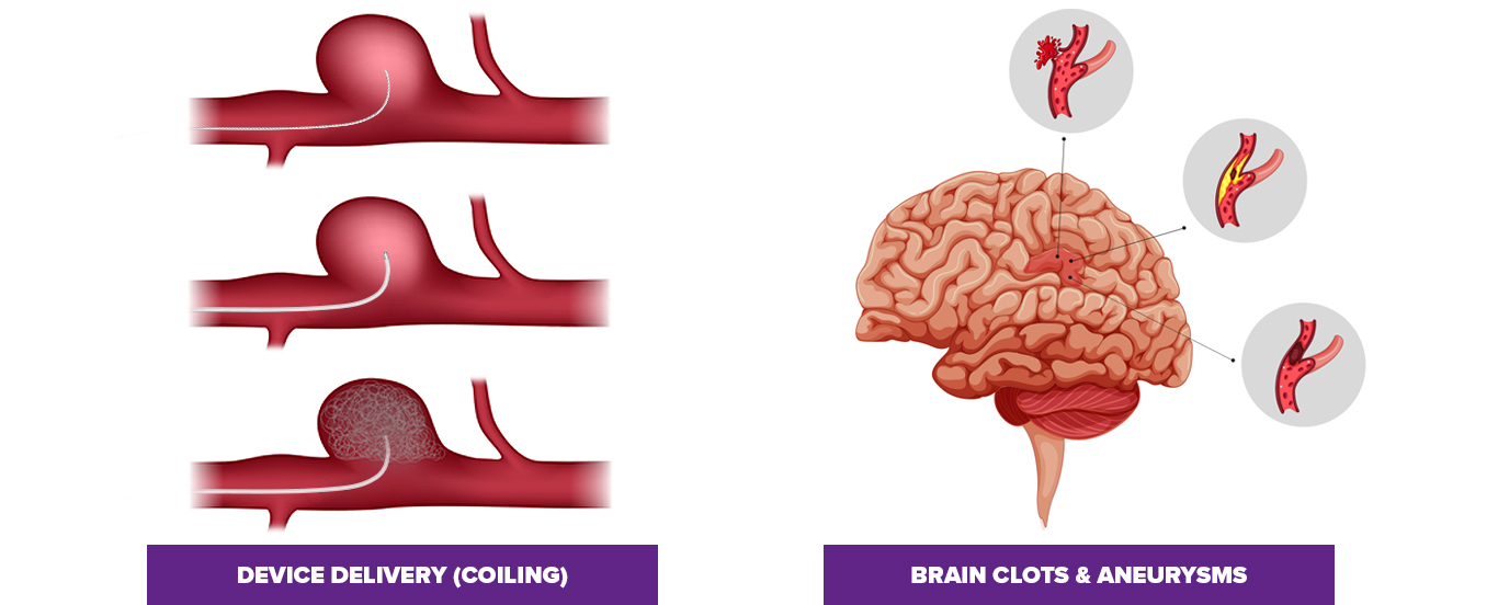 image of a neurovascular guide wire crossing the vessel to the aneurysm and delivering the microcatheter then the coils into the aneuyrism. To the right of the image is an image of a brain showing a blood clot and bursting aneurysm within 3 separate vessels